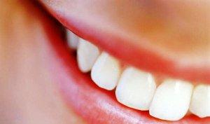 Encontrar pareja... primero vaya al dentista