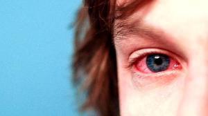 Los 6 tipos de alergias más comunes