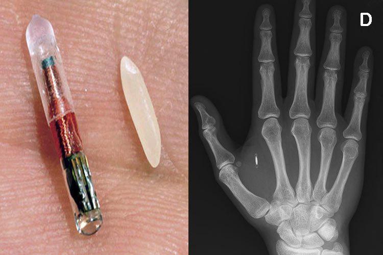 1º país en hacer implantes de microchips masivos